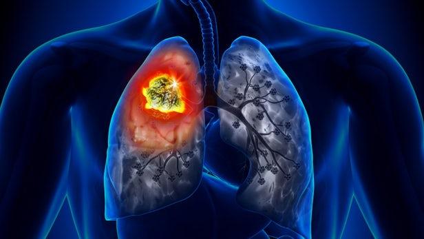 Google Lung Cancer
